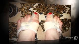 """прибор от шишек на ногах      - Скидка до 60% на ортопедический фиксатор(http://rabotadoma.luzani.ru/valgus/ Средство """"Valgus Pro"""" с огромной скидкой Фиксатор """"Valgus Pro"""" от компании,фирмы"""
