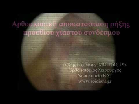 Αρθροσκόπηση γόνατος - Ρήξη πρόσθιου χιαστού & συρραφή έσω μηνίσκου - Δρ. Ν. Ροϊδης