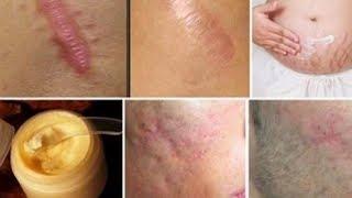 remede naturel - Éliminez n'importe quel type de cicatrice de votre corps en moins d'un mois