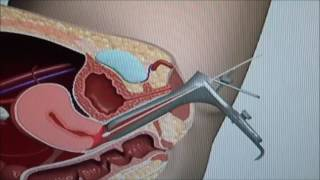 Pap Test  Procedure