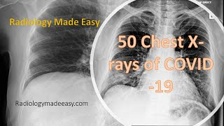 50 Chest X-rays of COVID-19 patients with daily progression | Corona Xray Features