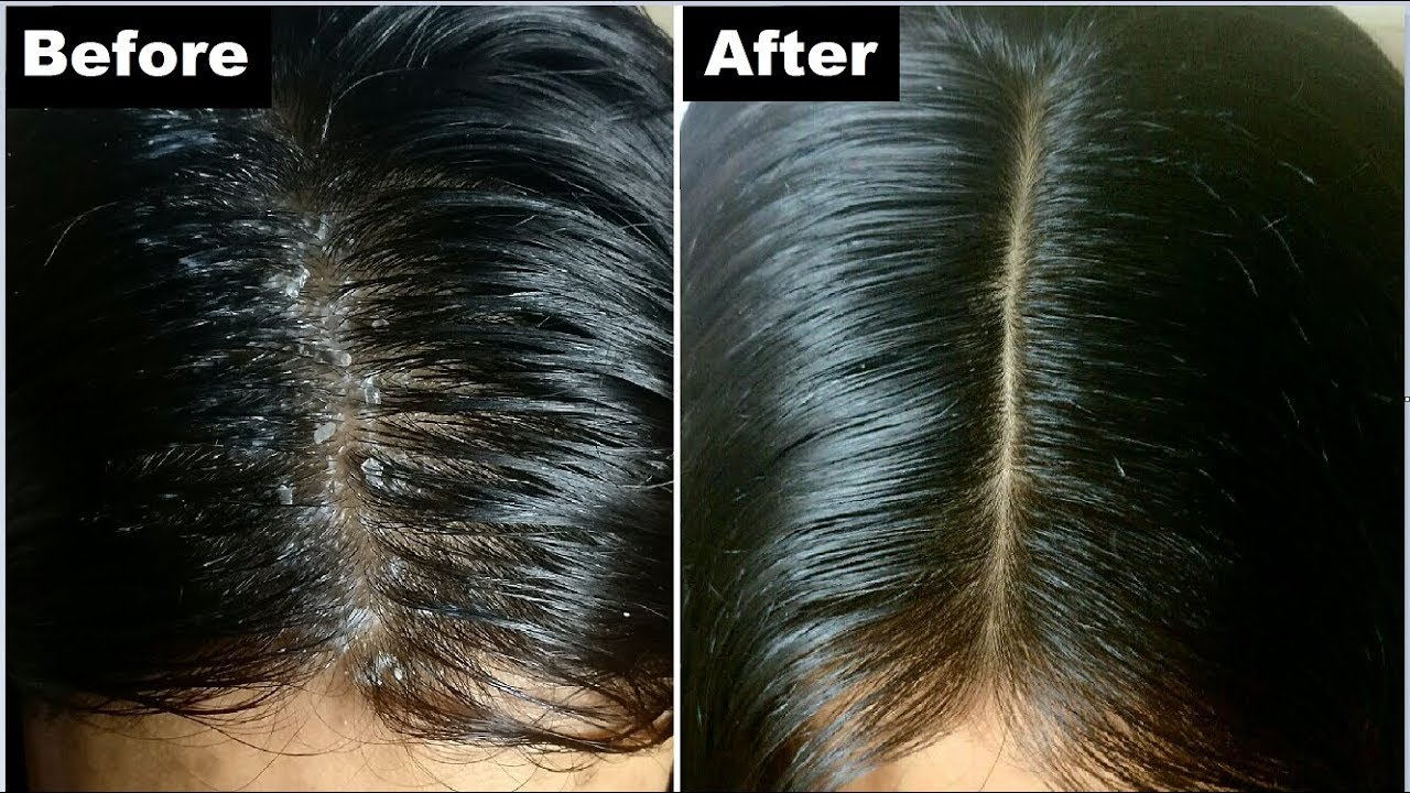 How to get rid of dandruff 36
