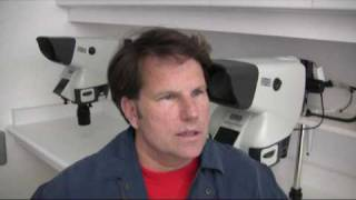 Doctor Hasson Hair Transplant Patient Testimony - 5880 Grafts - 1 Session