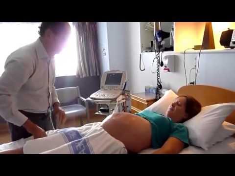 BabyMoon: Maniobra para dar la vuelta al bebé Doctor Bisits