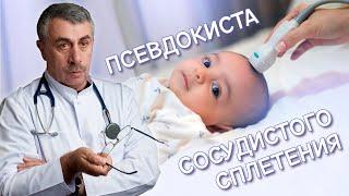 Псевдокиста сосудистого сплетения   Доктор Комаровский