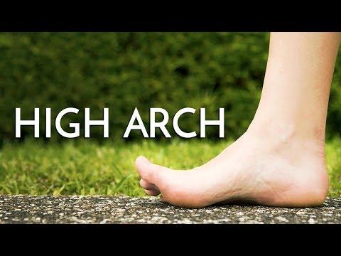 High Arch Feet (Cavus Foot) Georgina Tay, Singapore Podiatrist