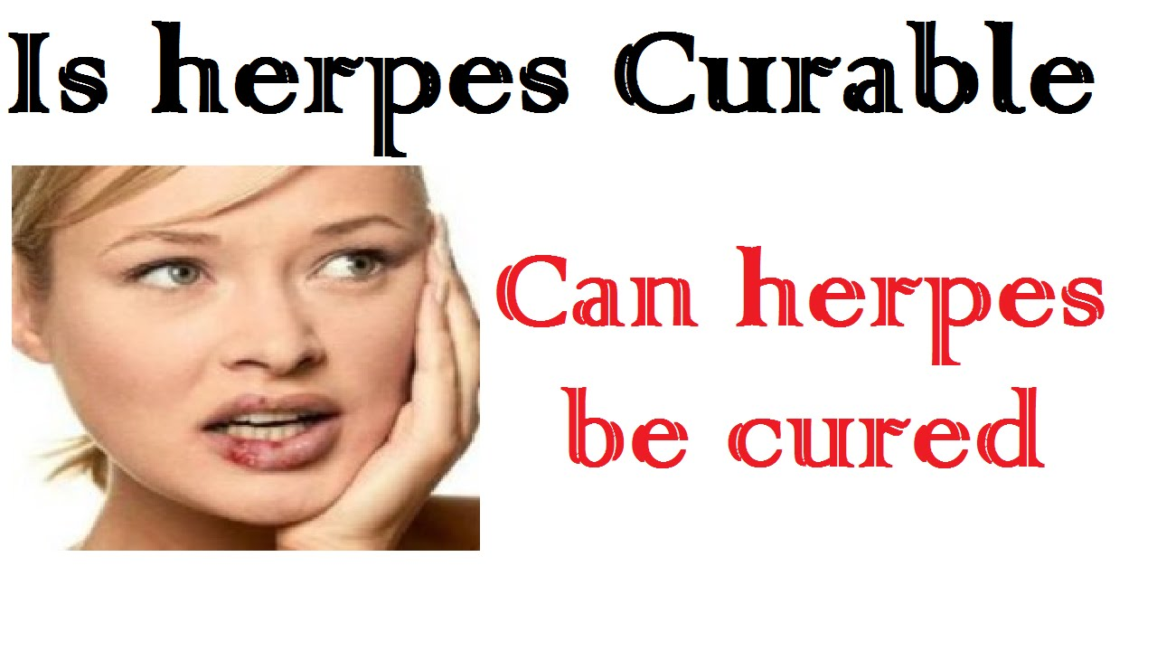 How To Cure Herpes  Naturally