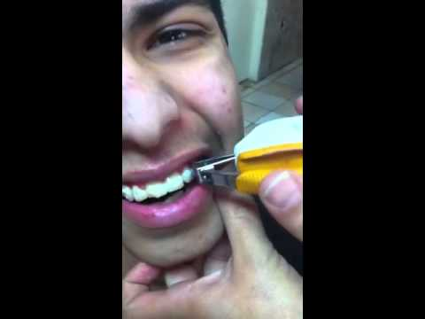 Taking off braces at home youtube taking off braces at home solutioingenieria