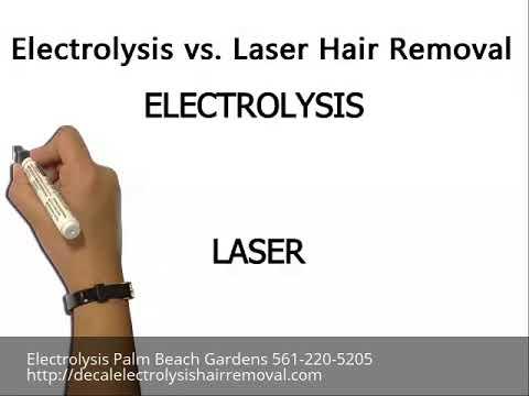 Electrolysis Palm Beach Gardens 561-220-5205 Electrolysis vs Laser Hair Removal