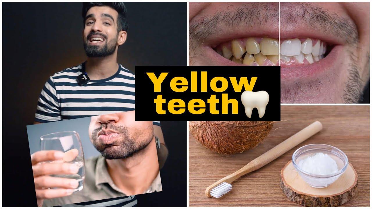 Yellow Teeth Cure *Natural*🦷🥥 #shorts #yellowteeth