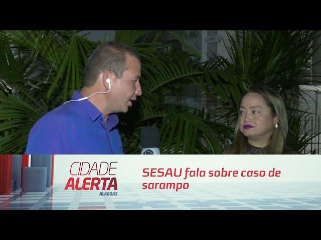 SESAU fala sobre caso de sarampo e tranquiliza população