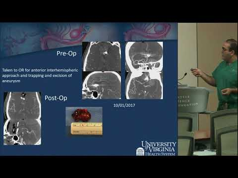 Aneurysms: Salvage Treatment of Complex Open and Endovascular Cases  - Yashar Kalani, MD, PhD