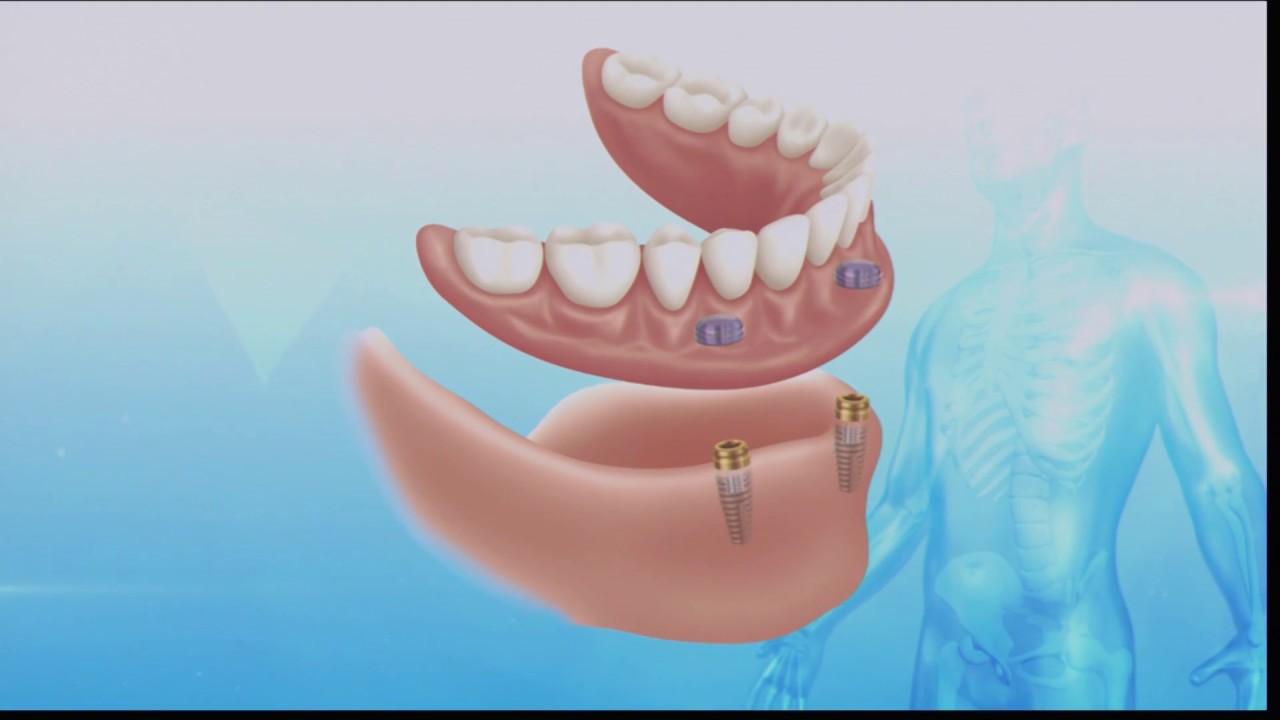 diferentes tipos de dientes postizos
