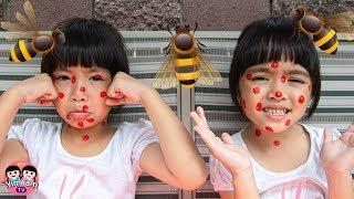 หนูยิ้มหนูแย้ม   โดนผึ้งต่อย ละครสอนใจเด็ก