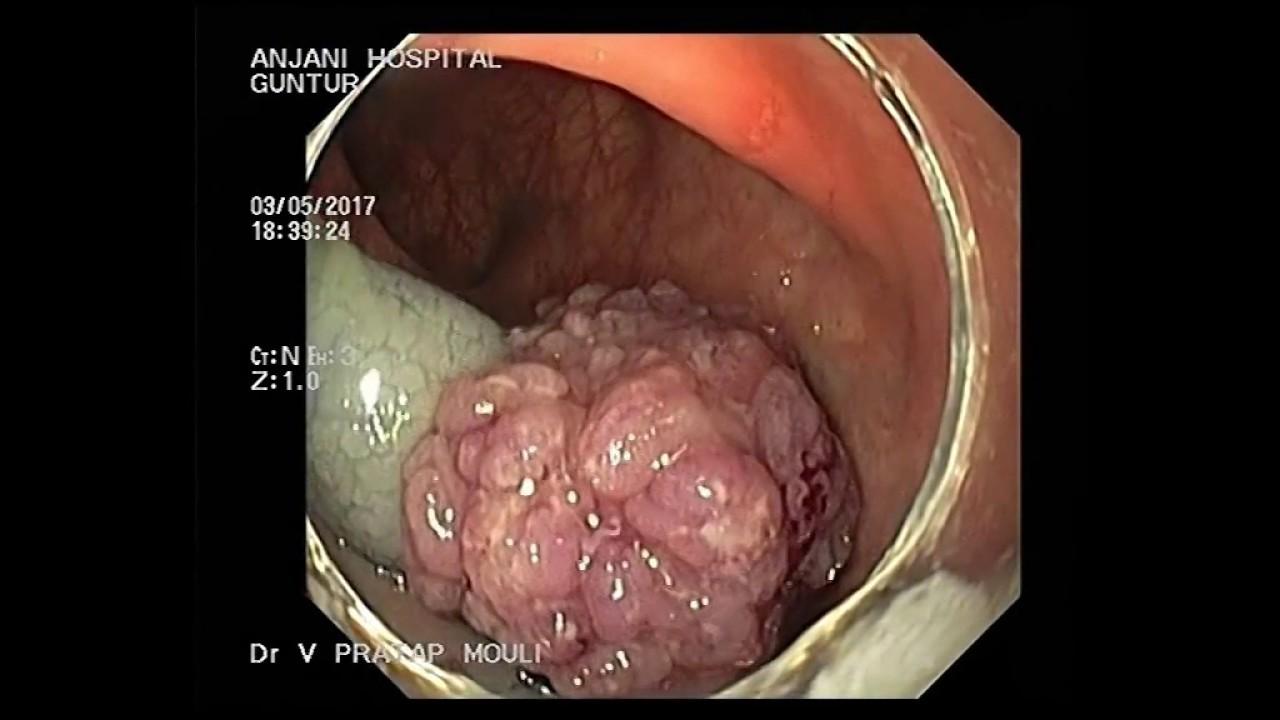 EMR of rectosigmoid jn polyp - YouTube