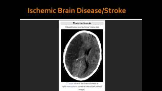 Ischemic Brain Disease/Stroke