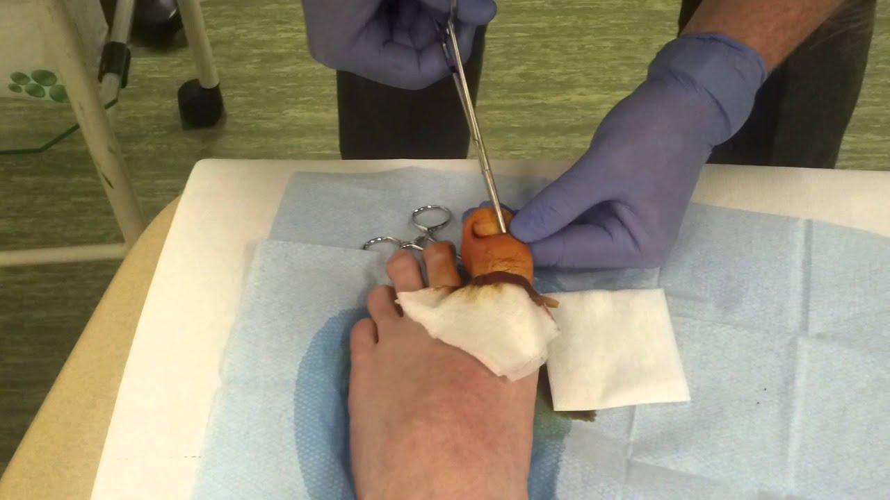 Ingrown toenail surgery - YouTube