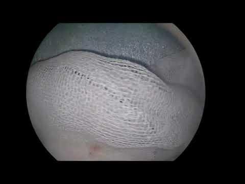 経鼻内視鏡 下垂体腺腫摘出術