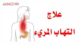 علاج التهاب المريء _ infections of the esophagus