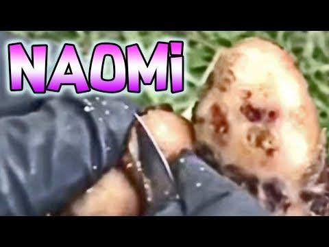 Naomi Jigger Removal  - Part 2 of 4