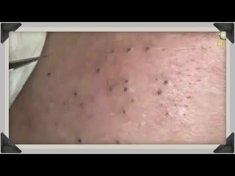 BLACKHEADS, CYSTIC ACNE AND WHITEHEADS REMOVAL ON FACE - Acne Treatment With Relaxing Music 190349!