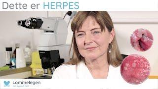 Dette er HERPES - Seksuelt overførbare infeksjoner - Lommelegen