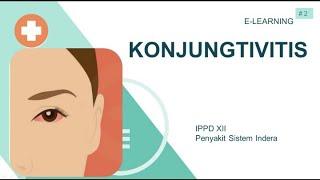 Jessica Iskandar Idap Penyakit Autoimun? Apa Itu Graves Disease? Sempat dinyatakan menderita Takikar.