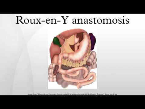 Roux En Y Anastomosis Youtube