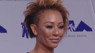Mel B 'Perfectly Fine' Amid Reports of Blindness