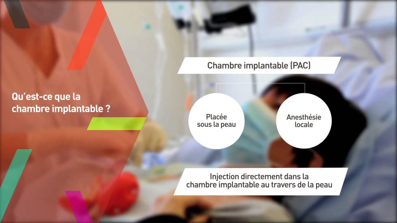 Cancer du sein la chimioth rapie en pratique youtube for Chambre implantable