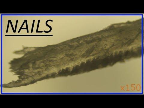 Человеческий ноготь под микроскопом. Nails Under A Microscope.