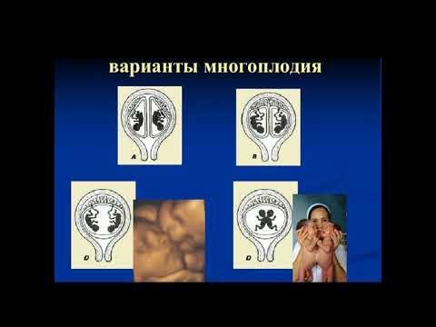 Павлова Н.Г. «Ультразвуковой скрининг при многоплодной беременности»