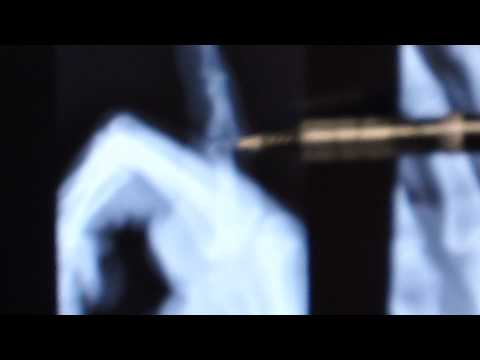 Middle Phalanx Fracture.MP4