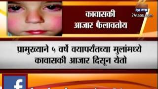 Kawasaki Diseases Found In Small Children