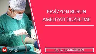 Revizyon Burun Ameliyatı Düzeltme !!