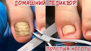Как подстричь толстые ногти на ногах? / Толстый ноготь на ноге, что делать?