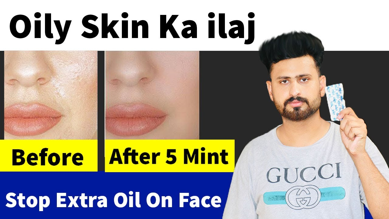 How To Remove Extra Oil From On Face Within 5 Mint | Best Oily Skin Treatment | Oily Skin Ka ilaj