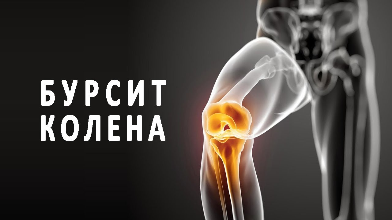 Бурсит коленного сустава лечение народными средствами