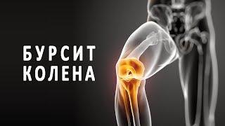 видео Бурсит коленного сустава: фото, симптомы и лечение