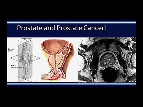 Prostate Health: Risk Detection and Optimizing Personalized Treatment