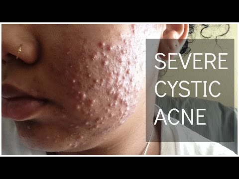 hqdefault - Benzoyl Peroxide And Acne Cyst