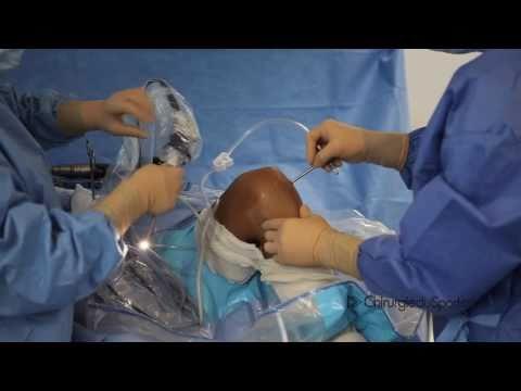 DIDT TLS : chirurgie du ligament croisé antérieur (LCA) au didt système TLS ou DT4-TLS