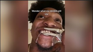 Orthodontist Reacts! Man RIPS His Braces Off! #Shorts