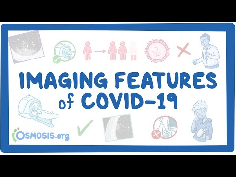 Imaging Features Of COVID-19