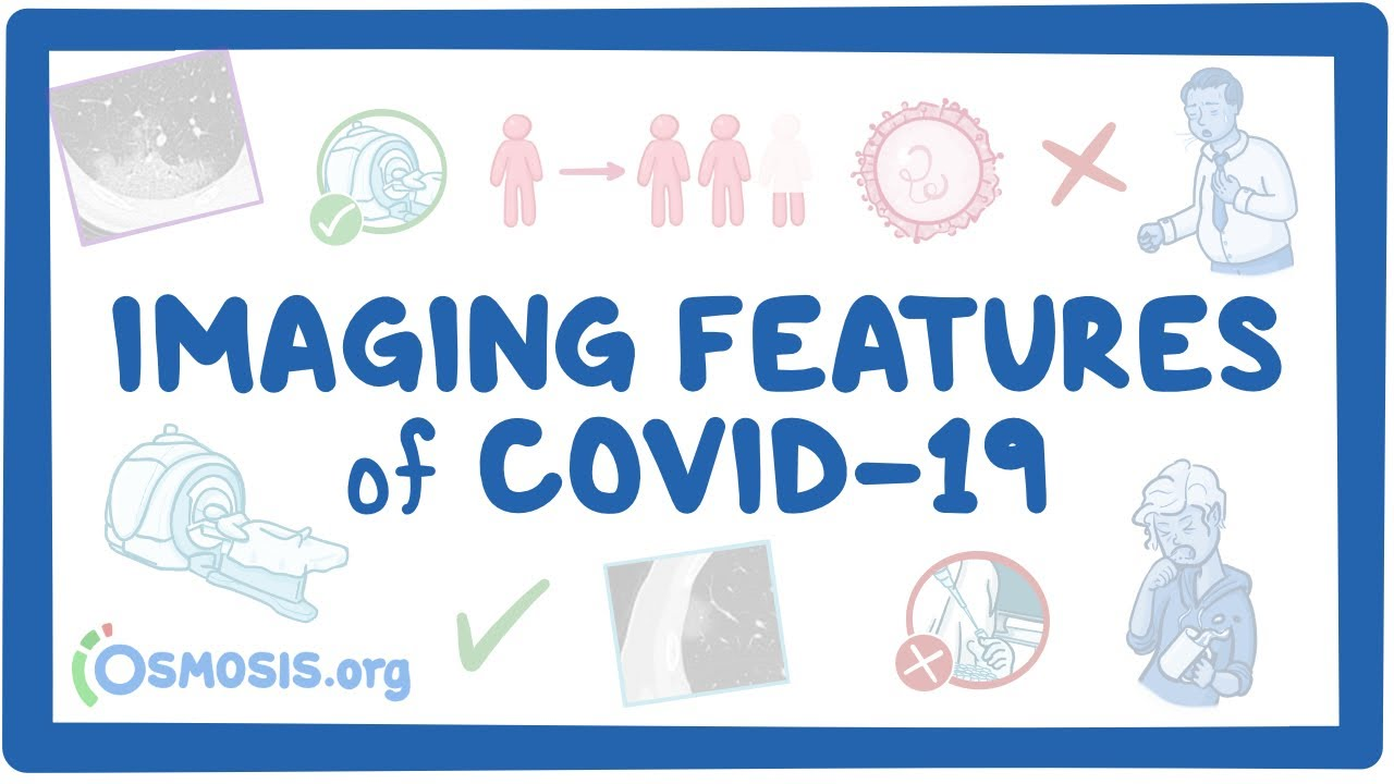 Imaging Features of COVID-19 #MedicalRadiology