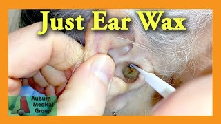 Ear Wax Removal Doctor   Auburn Medical Group
