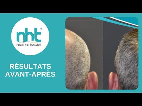 NHT Europe - Témoignage - Greffe de cheveux Avant/Après