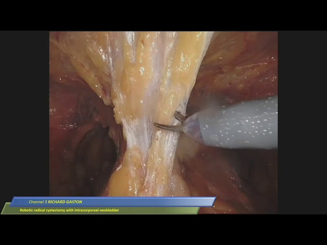 Richard Gaston - Robotic Radical Cystectomy with Intracorporeal NeoBladder