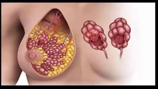 Nous le buvons quotidiennement, mais nous ne savons pas qu'il provoque le cancer du sein