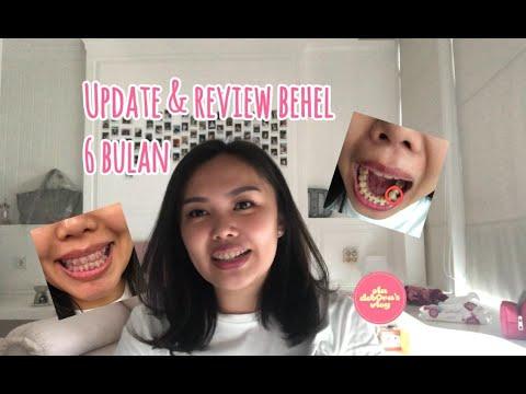 Update: Kawat Gigi 6 Bulan + mini GRWM